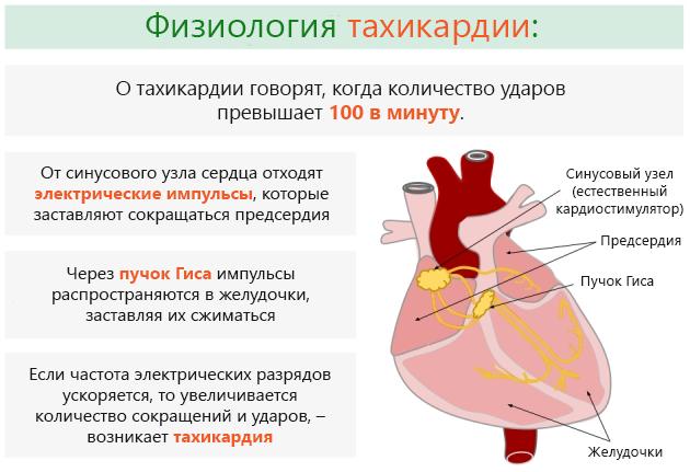 Что такое тахикардия сердца?
